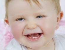 Olha esses 2 dentinhos… Muito fofa!!! AntesDepois